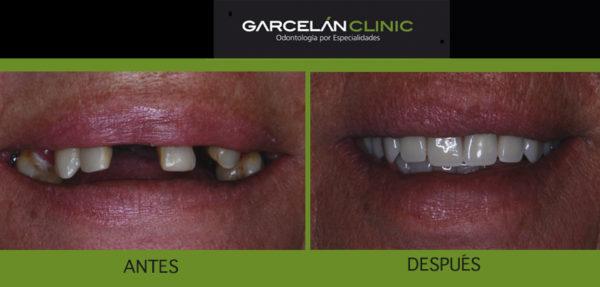 implante dental sevilla, dentista sevilla