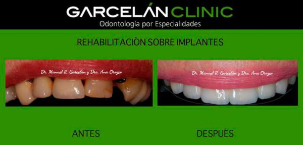 implante dental sevilla, clinica dental sevilla