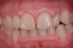 boca sana, periodoncia en sevilla, sangrado de encías, infección de encías, solución a la periodontitis