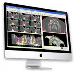 cirugia dental dirigida por ordenador