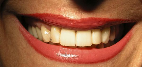 Alargamiento de coronas para mejorar tu sonrisa el día de tu boda, tratamientos dentales para novias