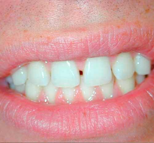 eliminación de frenillo en la boca en sevilla
