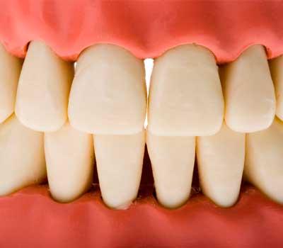 encías-con-espacio-entre-los-dientes, solución de encías en sevilla
