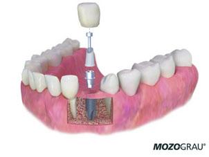 implantes dentales en sevilla, implante dental sevilla