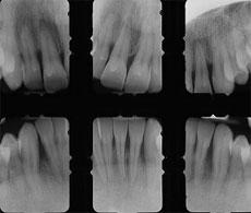 radiografía para saber el estado de salud de las encías, periodoncia en sevilla