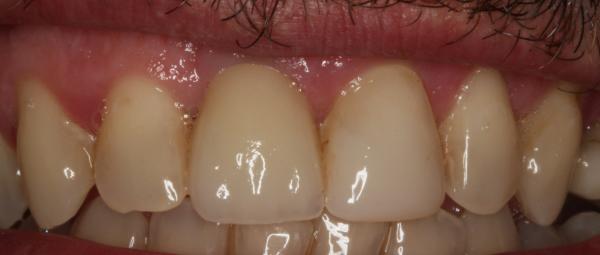 boca con corona sobre implante, después de de tratamiento de reposición de dientes, carillas de composite en sevilla