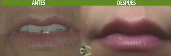 Boca con tratamiento de acido hialuronico
