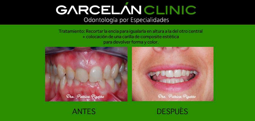 Estética Dental en Sevilla: carillas de composite Sevilla...