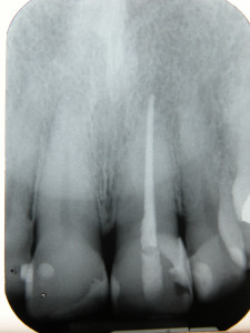 Radiografía de traumatismo dental
