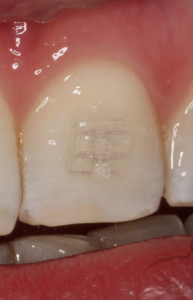 detalle de bracket estético, ortodoncia sevilla