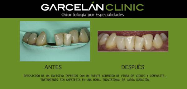 protesis dental sevilla, dentista sevilla