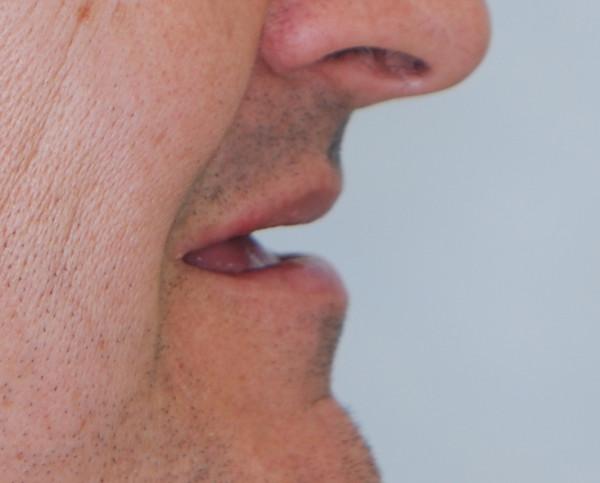 Boca de paciente desdentado antes de su tratamiento de prótesis dental