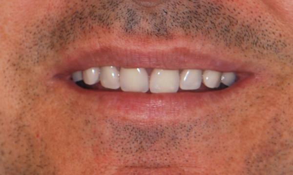 boca de paciente con sobredentadura, tras tratamiento de prótesis dental