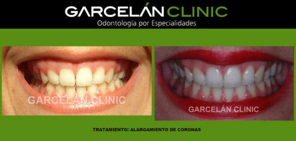 alargamiento de coronas, dentista sevilla, clinica dental sevilla