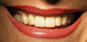 Después alargamiento de coronas, estética dental en sevilla, carillas en sevilla, carillas de composite en sevilla, carillas de porcelana en sevilla, blanqueamiento dental en sevilla