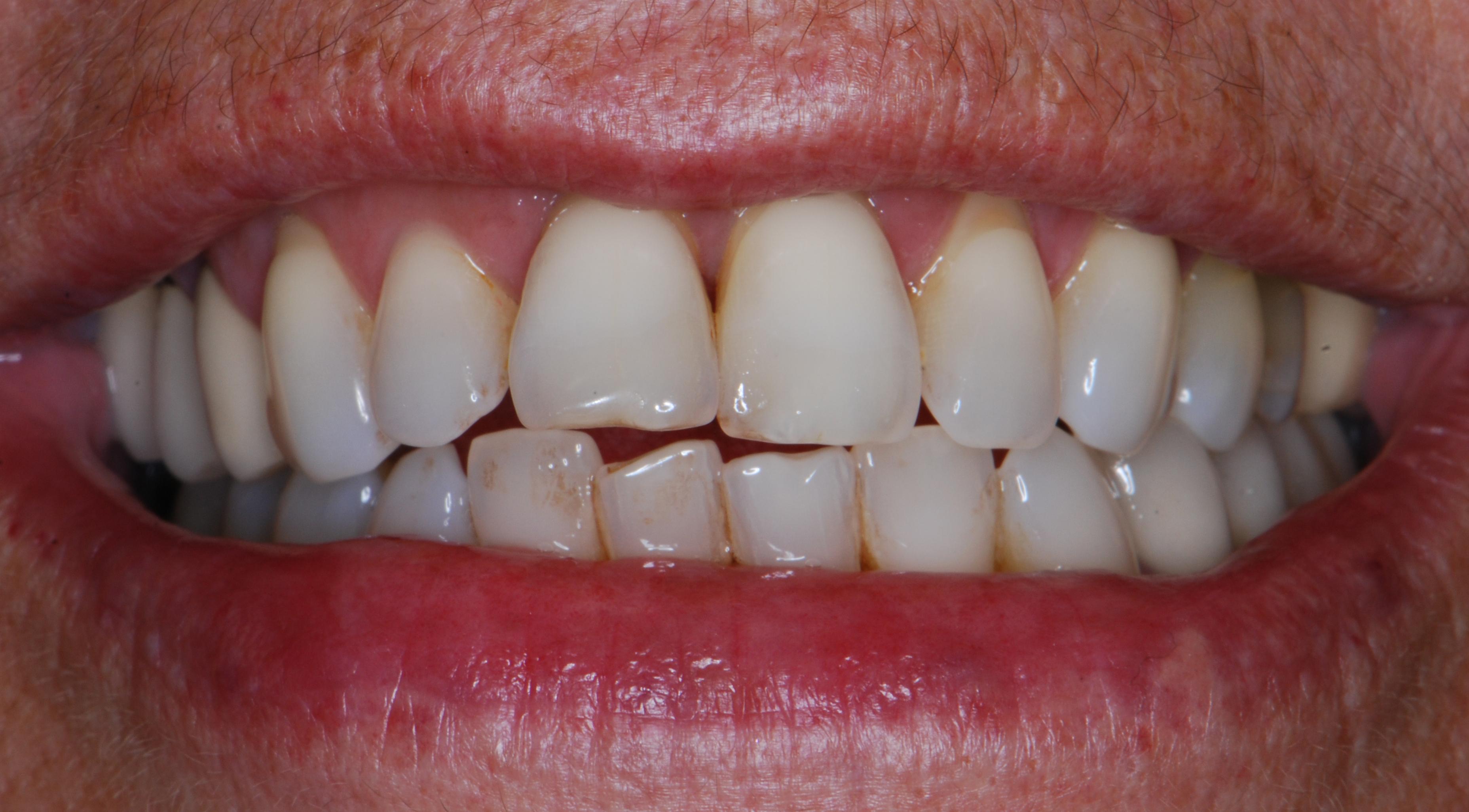 paciente que el mismo día de la extracción del incisivo, sale de la consulta con su diente fijo y el implante puesto.