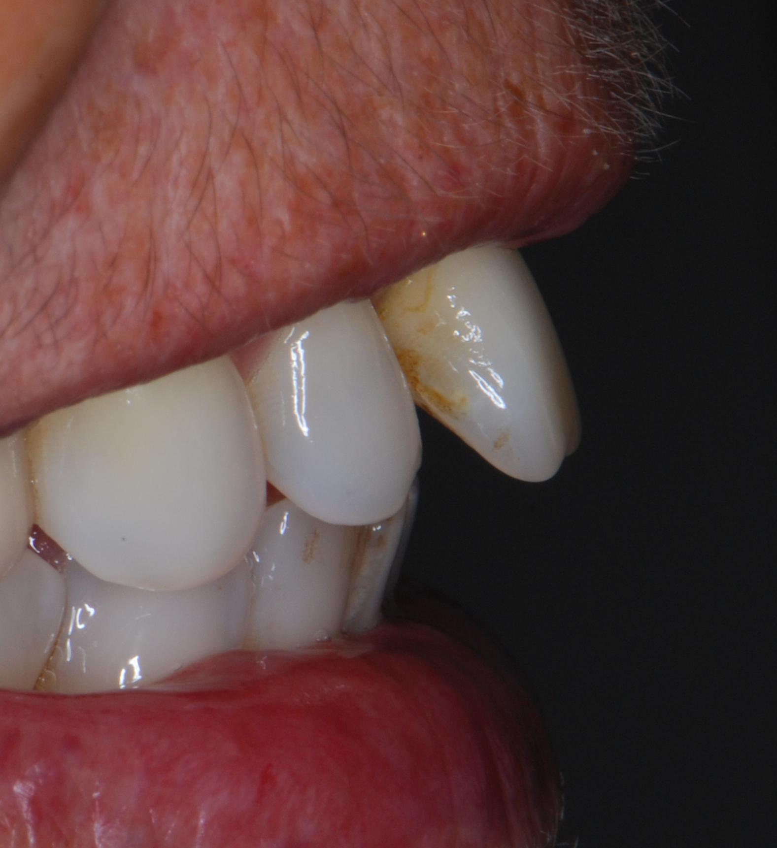 El mismo día de la extracción del incisivo, sale de la consulta con su diente fijo y el implante puesto.