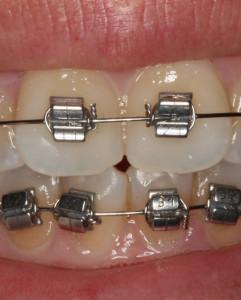 ortodoncia en sevilla, brackets metálicos en sevilla