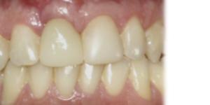después de tratamiento de reposición de dientes, carillas de composite en sevilla
