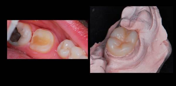 estética de dientes posteriores, diseño digital de sonrisa en sevilla, estética dental en sevilla
