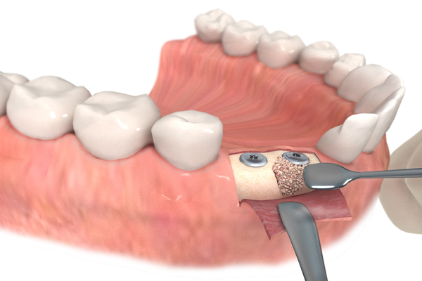 Cirugía oral en Sevilla, implantes dentales en Sevilla, implante dental en Sevilla