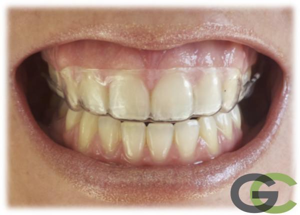 ferula termoplastica para poner después de tratamiento de ortodoncia