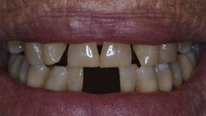 estética dental- antes de tratamiento con fibra de vidrio