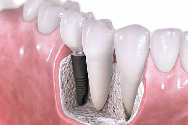 implantes dentales en Sevilla, Implante dental en Sevilla, precio implante dental en Sevilla