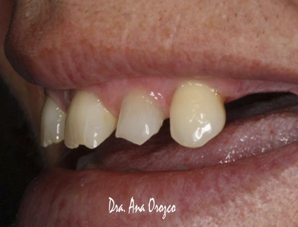diseño digital de sonrisa en sevilla, estética dental en sevilla