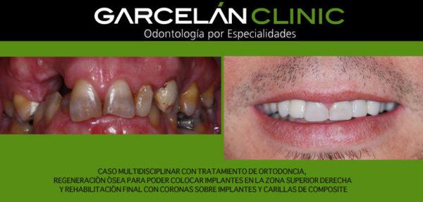 ortodoncia sevilla, implante dental sevilla, dentista sevilla