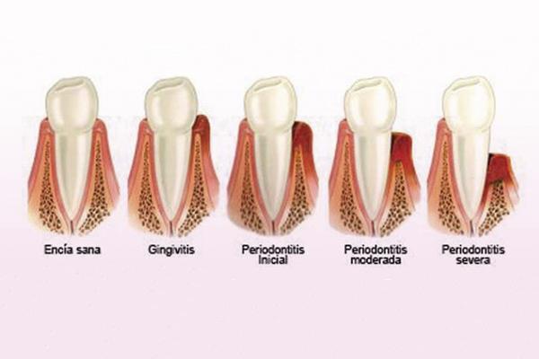 periodontitis, gingivitis, solución periodontitis, inflamación de encías, sangrado de encías