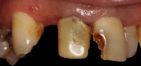 boca antes del tratamiento de puente de circonio-porcelana, prótesis dental en Sevilla