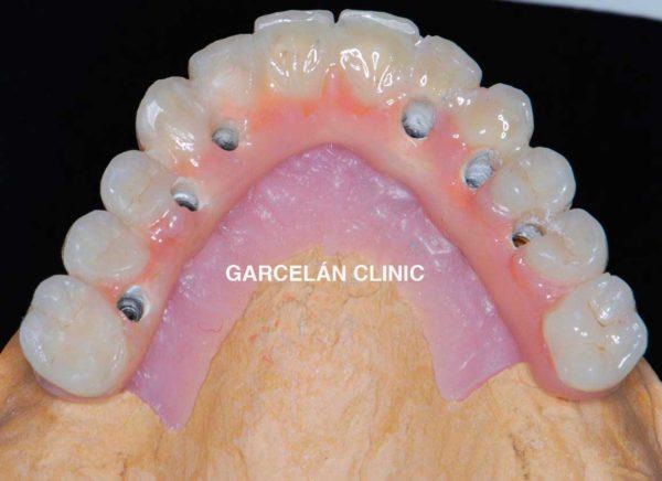 protesis hibrida superior, dentista sevilla