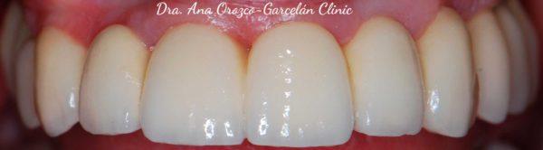 rehabilitación fija, detista sevilla, clinica dental sevilla