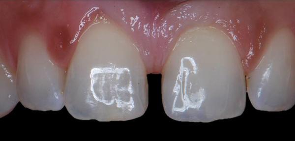 dentadura tras carilla de composite