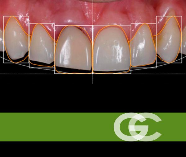 diseño digital de sonrisa, tratamientos dentales para novias