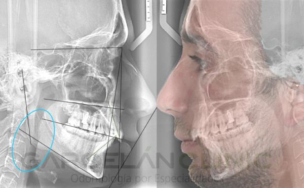 estudio de ortodoncia sevilla, ortodoncia sevilla, dentista sevilla, clínica dental sevilla