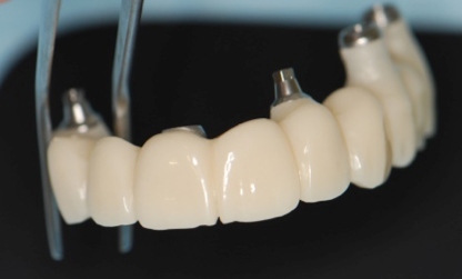 Rehabilitación fija superior provisional previa a la prótesis definitiva en porcelana