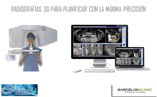 estudio de implante dental sevilla, implante sevilla, implantes dentales sevilla