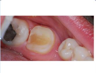 Ejemplo de muela endodonciada preparada para cementar la incrustración de composite
