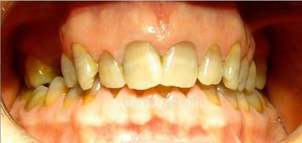 tinción de dientes por antibióticos
