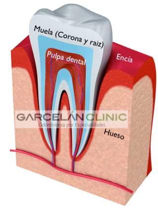 ¿Cómo es una muela por la mitad?, endodoncia realizada correctamente, endodoncia sevilla, dentista sevilla, clinica dental sevilla