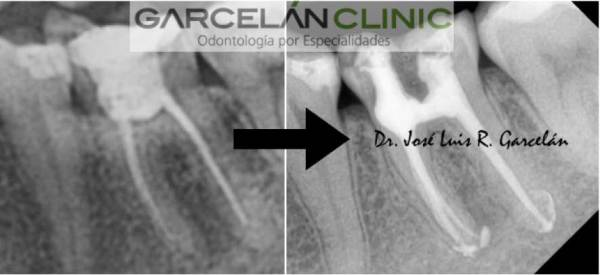 como saber si me han hecho una endodoncia correctamente, endodoncia realizada correctamente, endodoncia sevilla, dentista sevilla, clinica dental sevilla