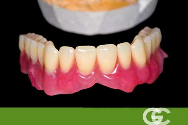 consejos para pacientes con dentaduras postizas, prótesis dentales en sevilla