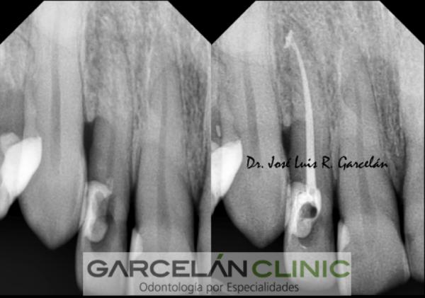 endodoncia realizada correctamente, endodoncia sevilla, dentista sevilla, clinica dental sevilla
