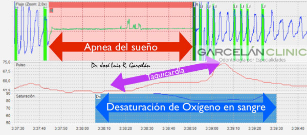estudio del sueño con apnealink, apnea del sueño sevilla, solución a la apnea del sueño en sevilla