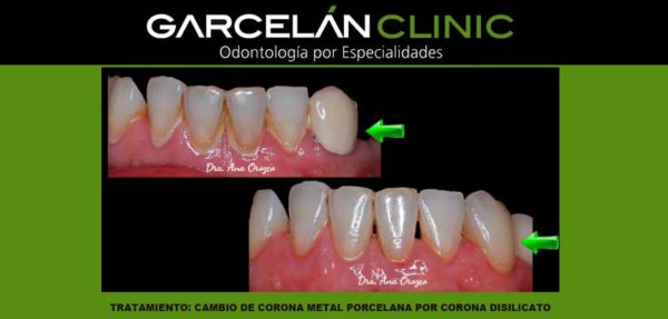 cambio de corona sevilla, detntista sevilla, clinica dental sevilla