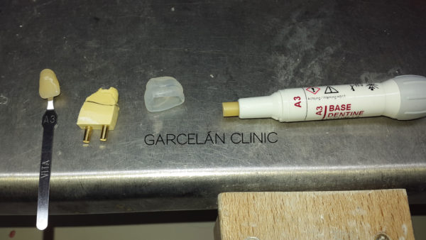 incrustaciones dientes sevilla