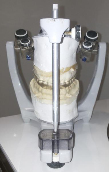 Articulador semiajustable para ferula de descarga