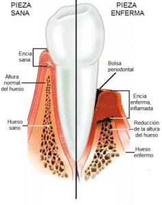 esquema de encía sana y enferma por periodontitis
